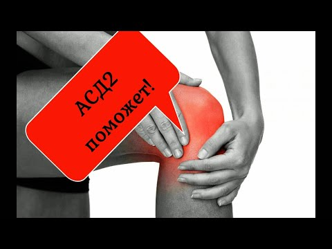 АСД2. Болит колено.ASD2. How to relieve inflammation of the knee joint with arthrosis.