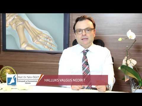 Jak pozbyć się kości w stopy palucha bez chirurgii
