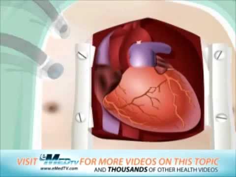Kalkulator ciśnienia krwi
