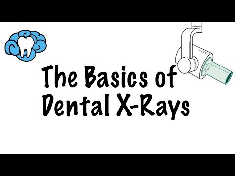 How to Read Dental X-Rays - YouTube