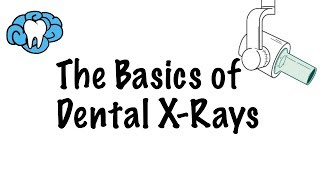 How to Read Dental X-Rays