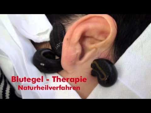 Nat Belastung bei Hypertonie