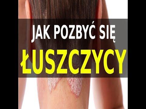 Leki zapalenie skóry z egzema