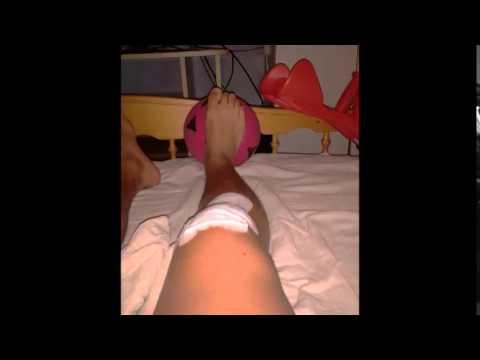 A csípőízület fájdalmának csökkentése