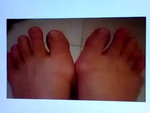 กระแทกที่ด้านบนของนิ้วเท้า