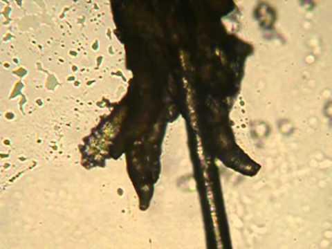A paraziták és a crijevima kódolják a djece tüneteit