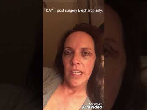 My Blepharoplasty 8 day journey of the upper and lower eyelids..