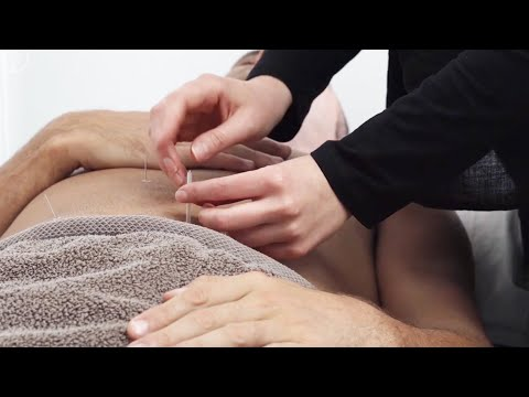 Acupuncture Diploma Course - Become An Accredited ... - YouTube