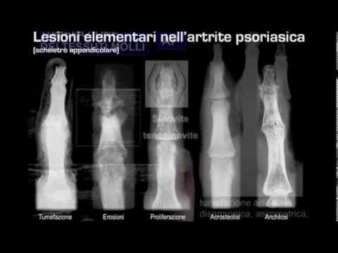 Osteocondrosi della colonna cervicale e toracica