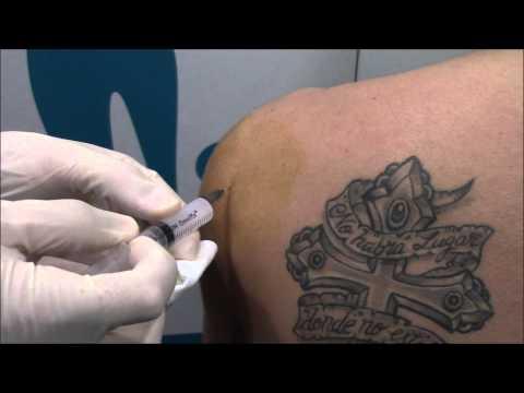 Cómo tratar las lesiones de los ligamentos de la rodilla