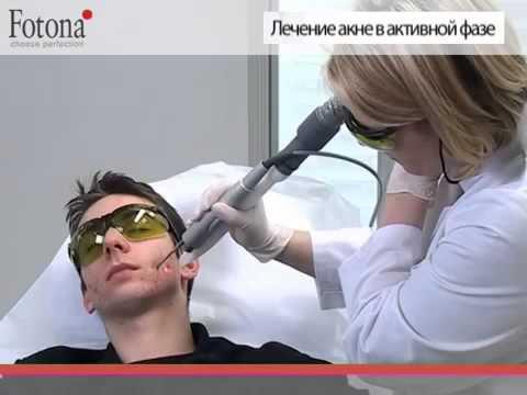 Народные методы от пигментных пятен на лице