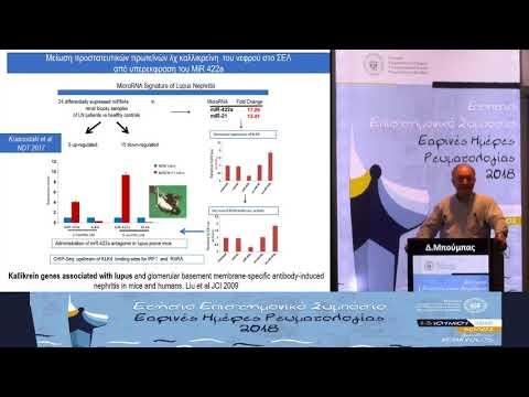 Δ. Μπούμπας - Νεότερες (μελλοντικές) θεραπείες στον ΣΕΛ