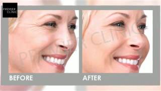 DISCOVER SIMPLE, INSTANT SOLUTION FOR FACIAL REJUVENATION!
