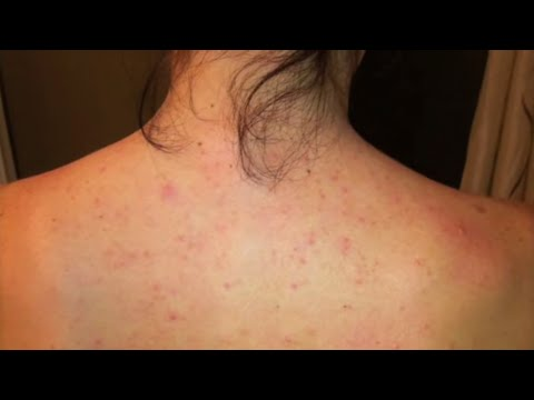 first folliculitis image vaccination obstinate