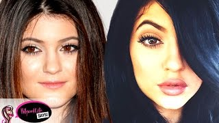 Kylie Jenner Before & After Plastic Surgery