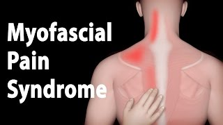 Myofascial Pain Syndrome and Trigger Points Treatments, Animation.