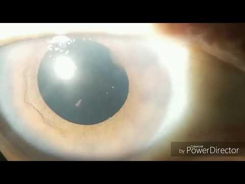 A látás és a szülés helyreállítása