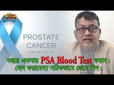 A prostatitisből beteg lehet a has