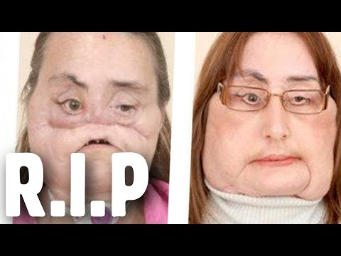 Connie Culp, first U.S. recipient of partial face transplant, dies at 57
