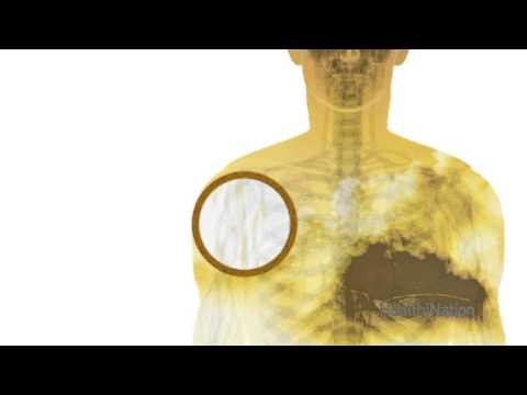 Video The Benefits of Vitamin D | HealthiNation