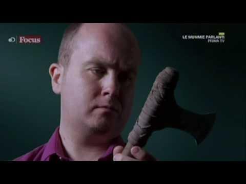 Trattamento di vene varicose grandi