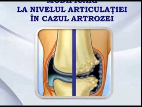 Dureri la nivelul articulațiilor și coloanei vertebrale