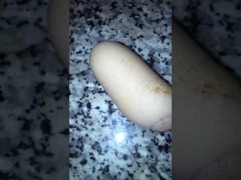 Quale parassita vive in una vagina