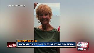 Doctors describe early warning signs of flesh-eating bacteria