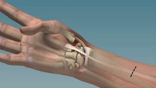 A Pain-Free Thumbs Up - Mayo Clinic
