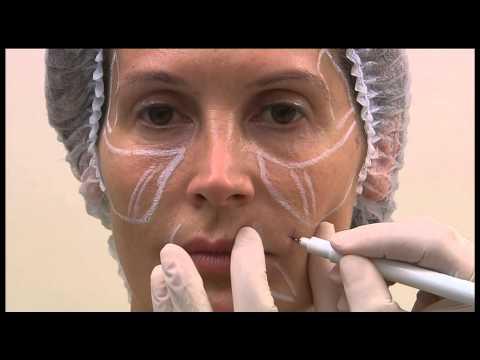Technika zabiegów na twarz z kaniulą SOFTFIL® PRECISION