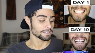 How To Spot Fake Crest 3d Whitestrips