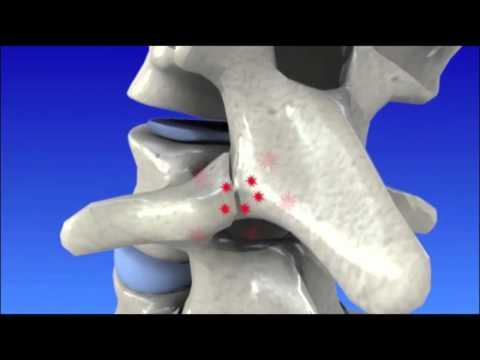 Stechender Schmerz beim Bewegen des Halses