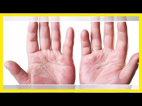 Die Arthritis des Kniegelenkes bei der Schuppenflechte