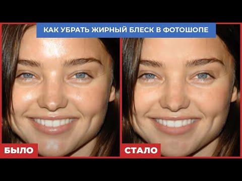 Косметология схема лица