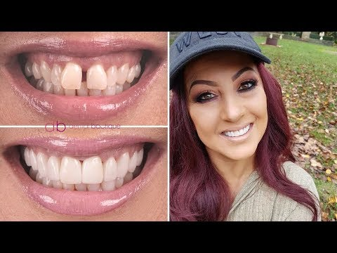 Julie's Incredible Smile Makeover With Porcelain Veneers