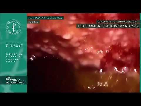 Papilomatosis bovina tipos