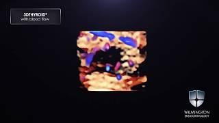 3DTHYROID® Thyroid Cancer Video - Soft Nodule