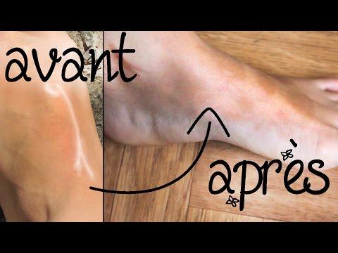 Que retirer la douleur dans les veines sur les pieds
