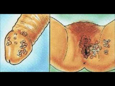 Como se ve el parásito el ascaride