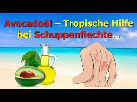 Avocadoöl - Tropische Hilfe bei Schuppenflechte