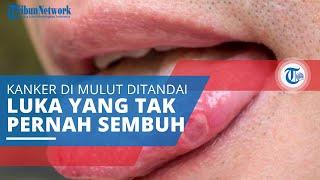 Kanker Lidah, Jenis Kanker yang Mengakibatkan Tumor atau Luka yang Tak Kunjung Sembuh