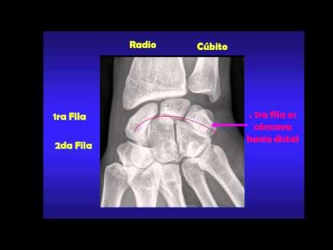Ejercicios para la columna vertebral y las articulaciones en línea