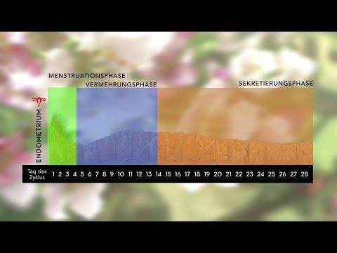 Transfer von Embryonen im natürlichen Zyklus