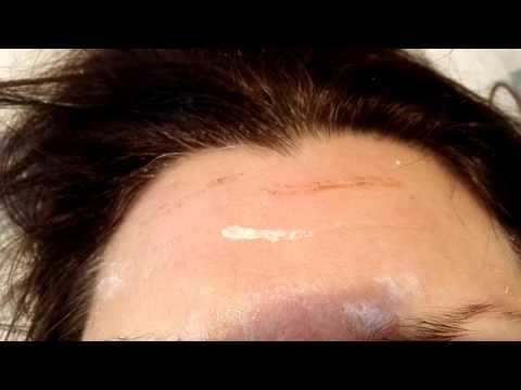 Подтяжка средней зоны лица спб
