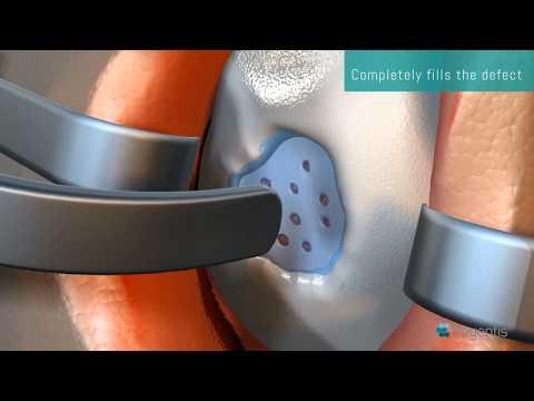 Artroza articulației genunchiului provoacă boala