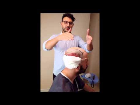 Polvere di zenzero di capelli in maschere