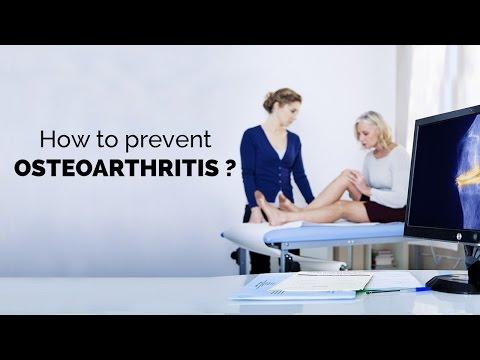 Osteochondrose Klassifizierung