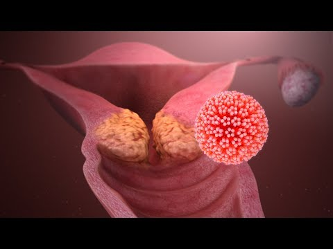 Hpv cancer genetics