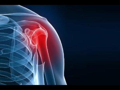 Care este tratamentul pentru artroza genunchiului
