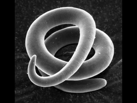 Giardiasis bélforma